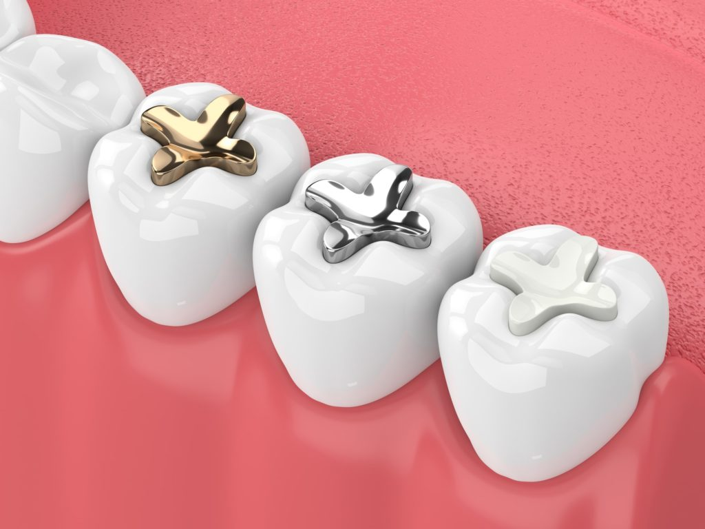 Normandy_Dentistry_Lakewod_Dentistry_Jacksonville_Florida_tooth_fillings_and_sealants