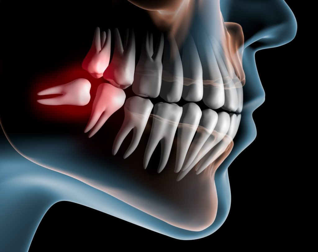 Normandy Dentistry and Lakewood Dentistry Jacksonville Florida Wisdom Teeth Removal