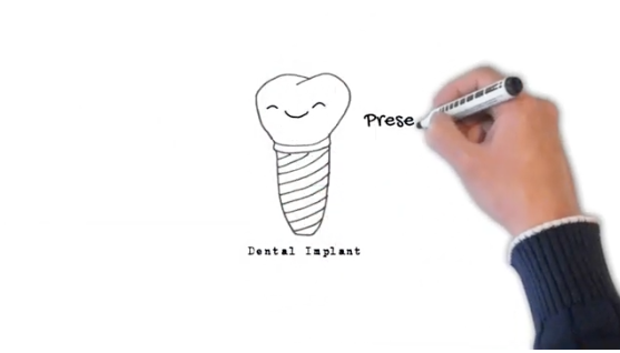 A hand with a black marker draws a dental implant on a whiteboard
