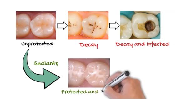 A chart showing decay growth in a tooth with a branch out to show how dental sealants affect decay growth