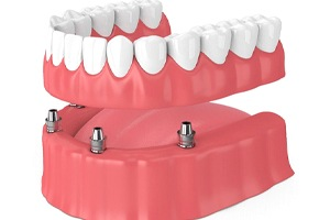 illustration of all on 4 dental implants, with 4 implants on the gumline and an entire row of teeth being placed on the implants