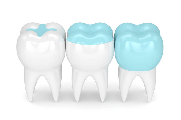 Illustration of three teeth with various levels of dental sealant applied