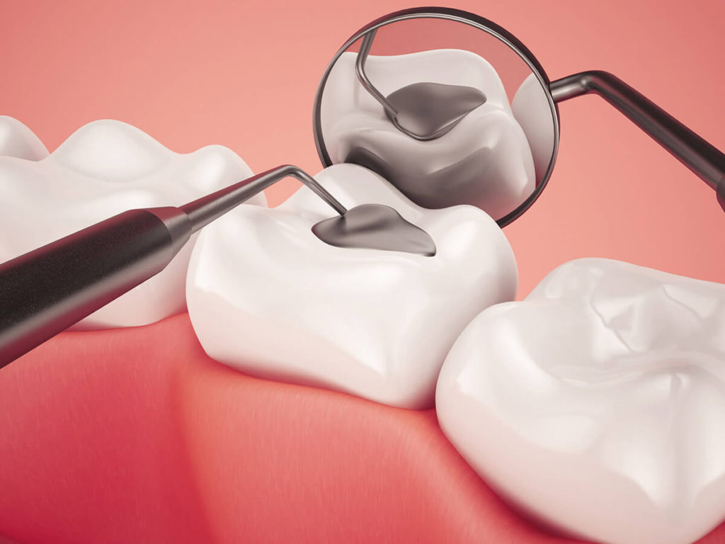 Illustration of a silver dental filling being applied to a tooth