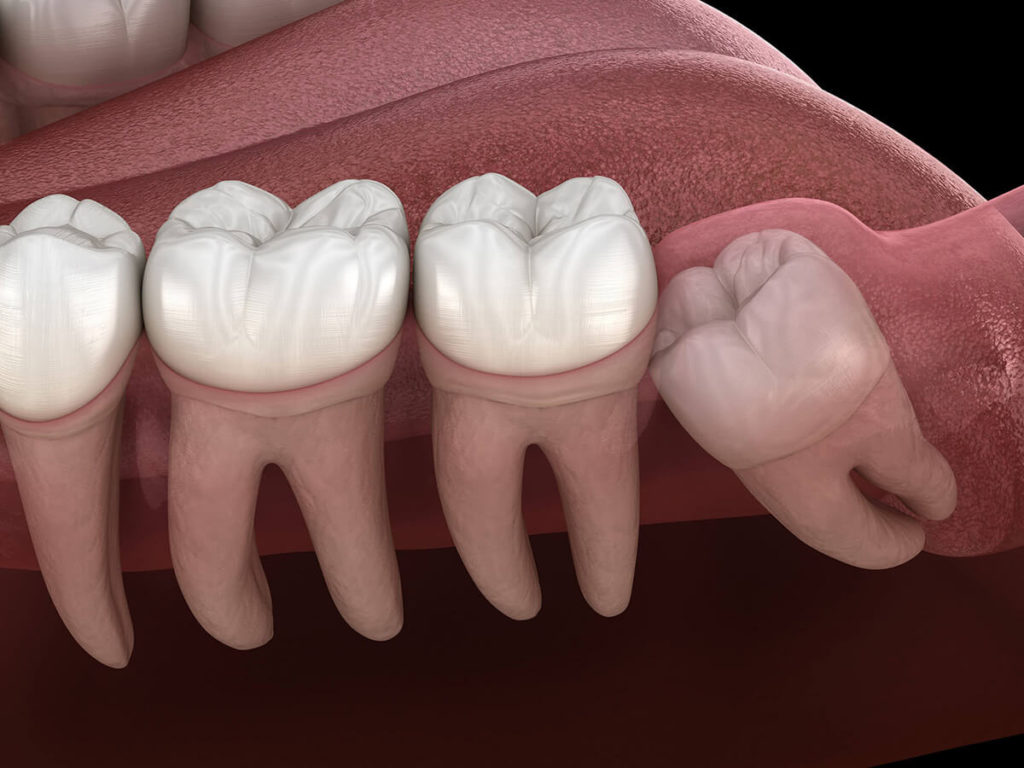 Illustration of teeth in a mouth showing an impacted wisdom tooth that needs removed