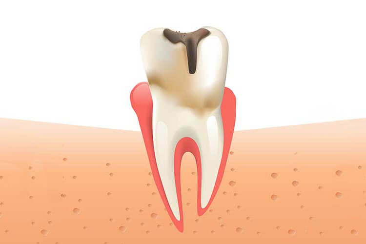 Illustration of a tooth with a cavity in it